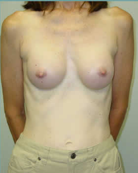 After-Augmentation Patient 10