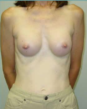 After-Augmentation Patient 10