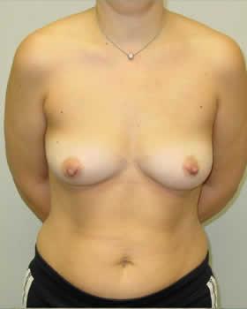 Before-Augmentation Patient 11