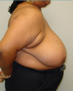 Before-Breast Reduction 15