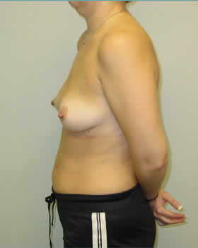 Before-Augmentation Patient 12