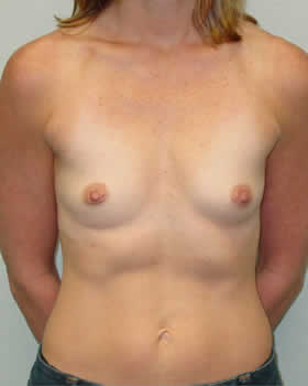 Before-Augmentation Patient 13