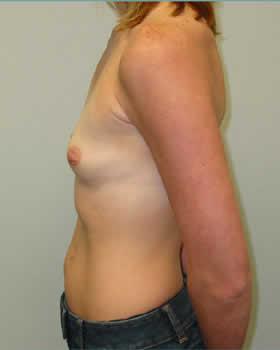 Before-Augmentation Patient 14