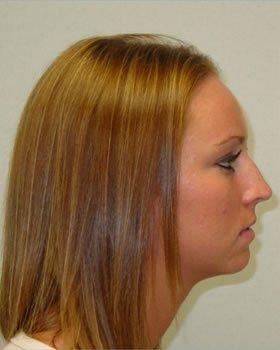 Before-Rhinoplasty 1