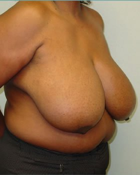 Before-Breast Reduction 4