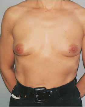 Before-Augmentation Patient