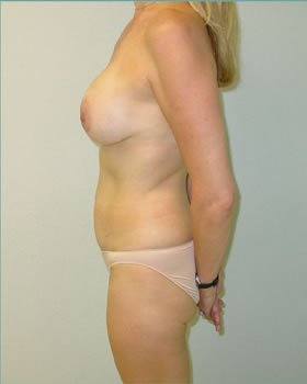 After-Tummy Tuck 3