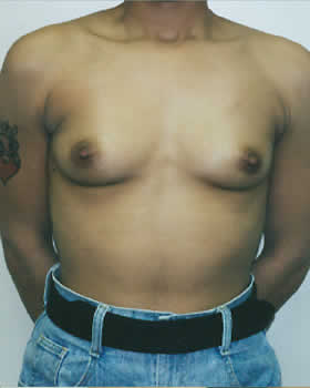 Before-Augmentation Patient 3
