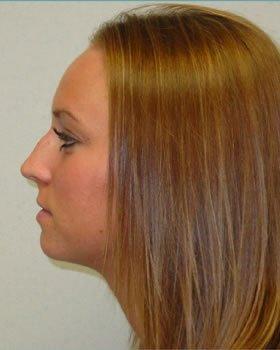Before-Rhinoplasty 5
