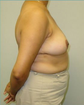 After-Breast Reduction 8