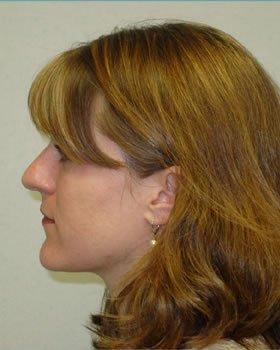 Before-Rhinoplasty 6