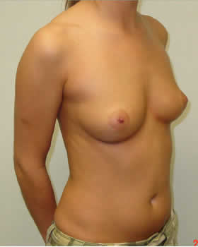 Before-Augmentation Patient 5