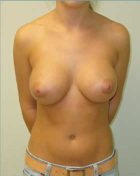 After-Augmentation Patient 6