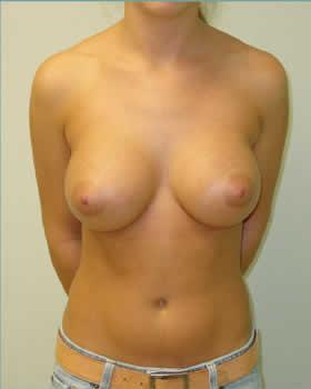 After-Augmentation Patient 6