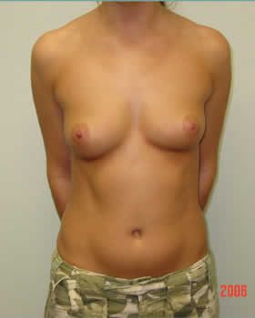 Before-Augmentation Patient 6