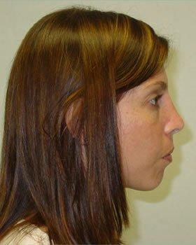 After-Rhinoplasty 9