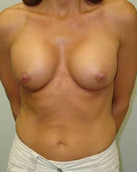 After-Augmentation Patient 8