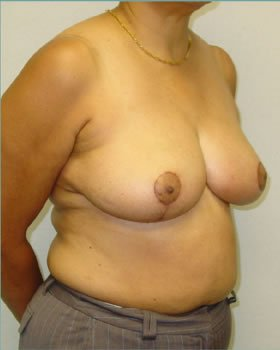 After-Breast Reduction 12