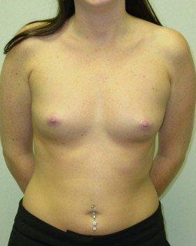 Before-Augmentation Patient 20
