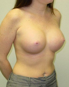 After-Breast Augmentation 20b