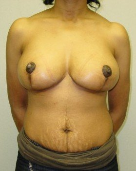 After-Breast Reduction 20 ap
