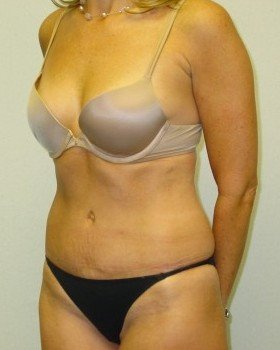 After-Tummy Tuck 7