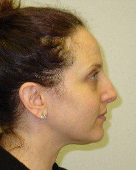 Before-Rhinoplasty 16