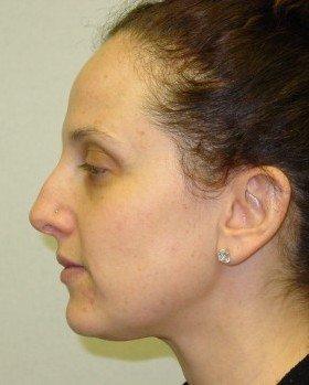Before-Rhinoplasty 13