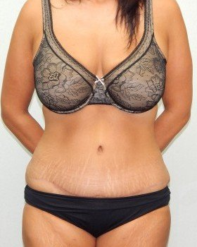 After-Tummy tuck Image 8