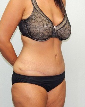 After-Tummy tuck Image 9