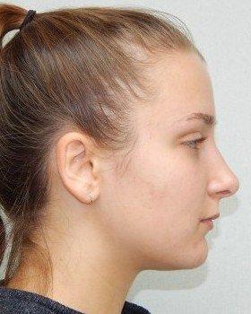 After-Rhinoplasty Image 20