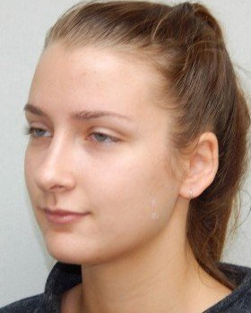 After-Rhinoplasty Image 22