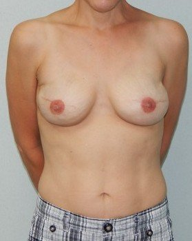 After-Bilateral Breast Reconstruction After mastectomies (actual patient)