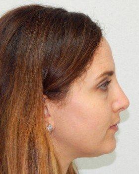 After-Rhinoplasty 16