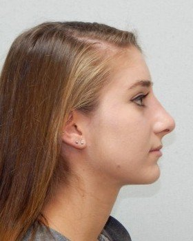 After-Rhinoplasty image 17