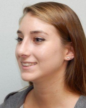 After-Rhinoplasty Image 18