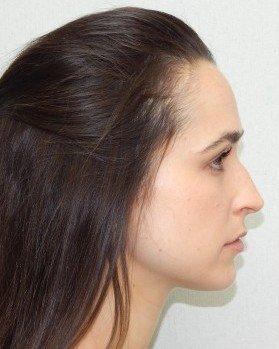 Before-Rhinoplasty Image 23