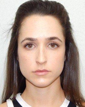 Before-Rhinoplasty Image 24