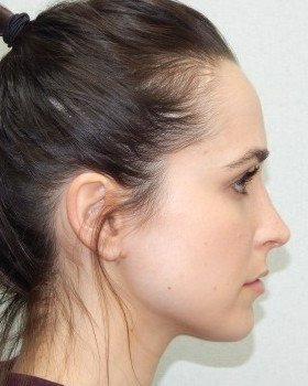 After-Rhinoplasty Image 23