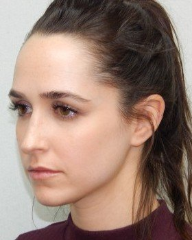 After-Rhinoplasty Image 25
