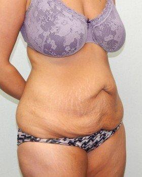 Before-Tummy tuck Image 9