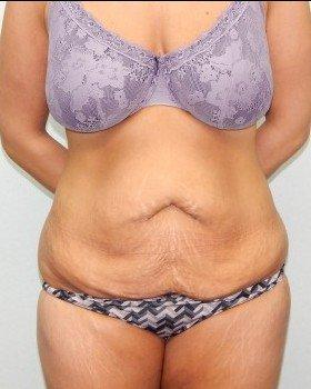 Before-Tummy tuck Image 8
