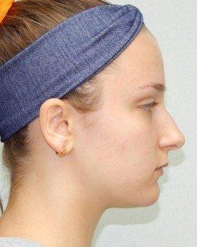 Before-Rhinoplasty Image 20
