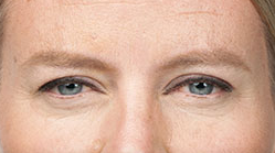 Screenshot Botox ctsy 2