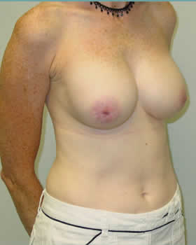 After-Augmentation Patient 19
